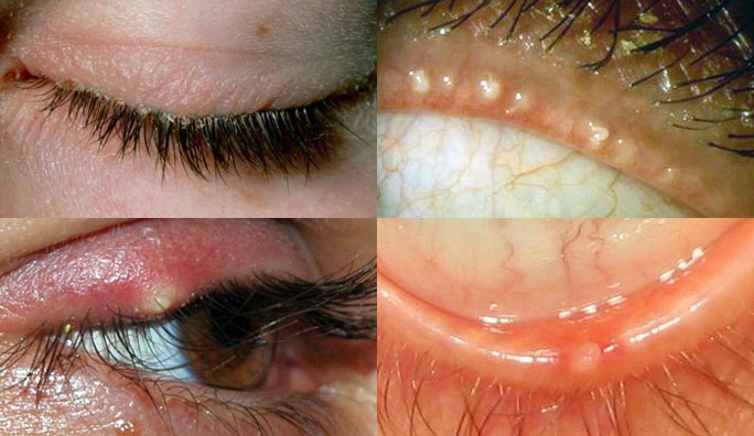 Anterior and posterior blepharitis, and a stye (bottom left)