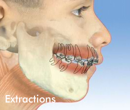 Typical Orthodontic Treatments — Expressions Orthodontics