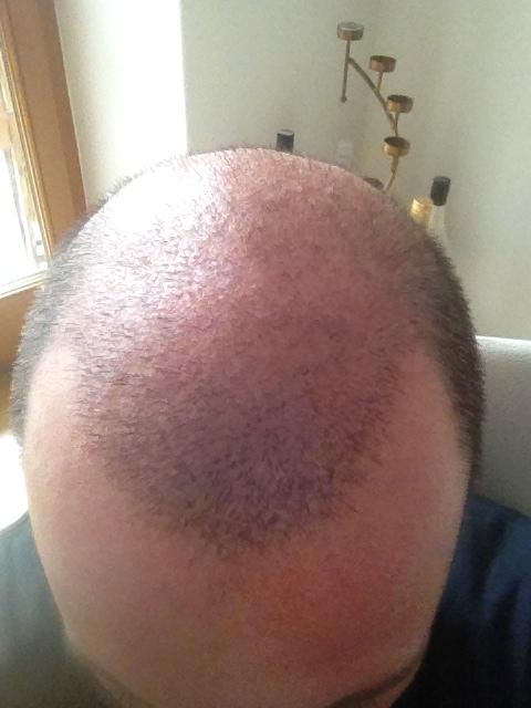 2,5 Wochen nach dem FUE-Eingriff  Die Haare wachsen...