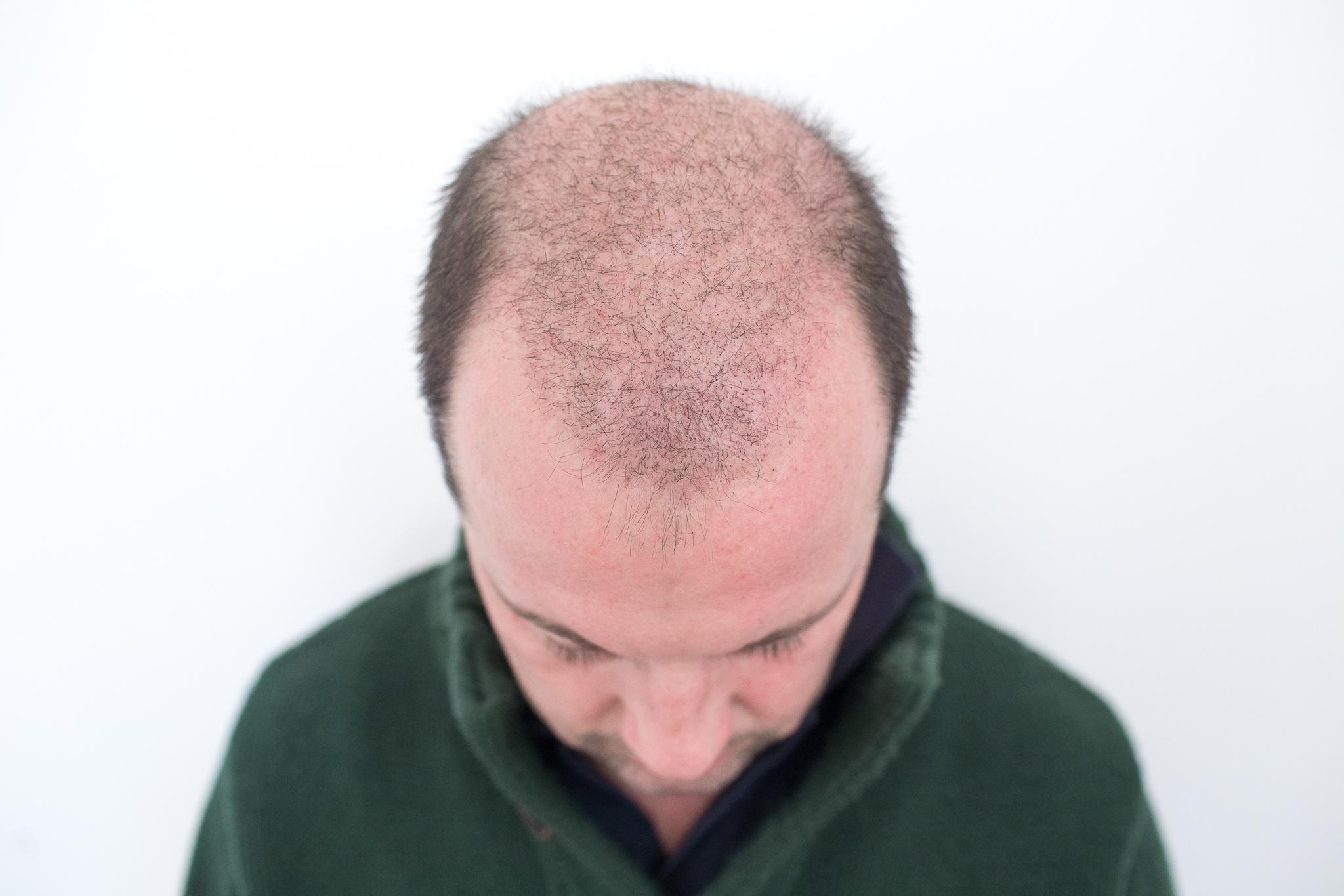 02.02.2016: die transplantierten Haare fallen aufgrund Sauerstoffmangels planmässig aus und die Wurzel bildet das dauerhaft bleibende Haar. Schön langsam kann man die kleinen Stopperln erkennen.
