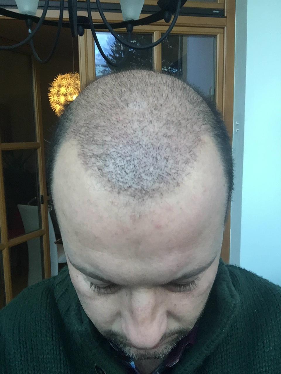 12.01.2016: Ein noch sehr gut mit transplantierten Haaren bestücketer Oberkopf. Der vorausgesagte Haarausfall setzt jedoch langsam ein!