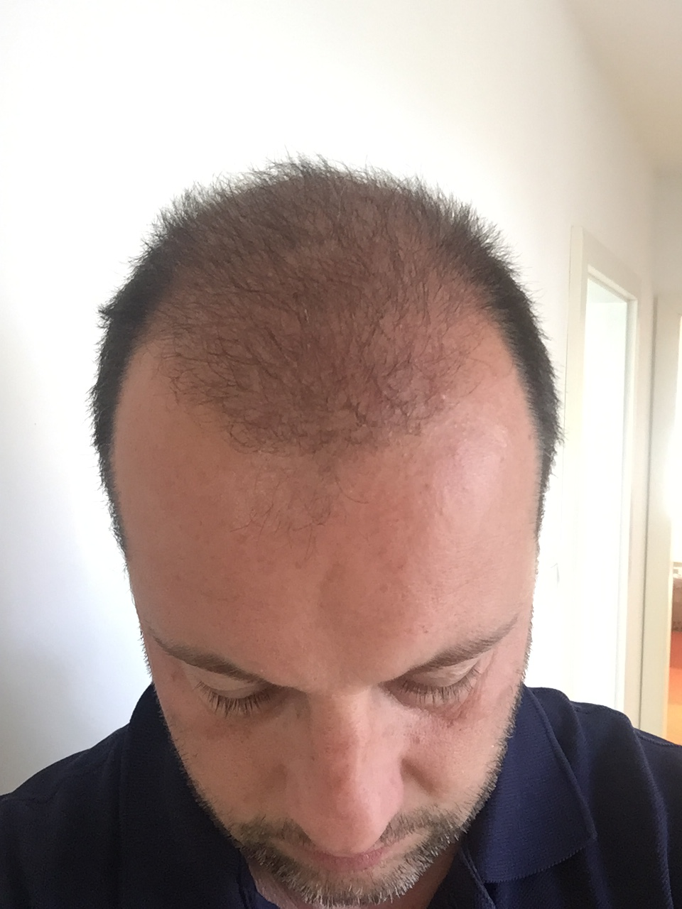 30.03.2016: wieder eine deuliche Verbesserung der Haardichte ersichtlich!