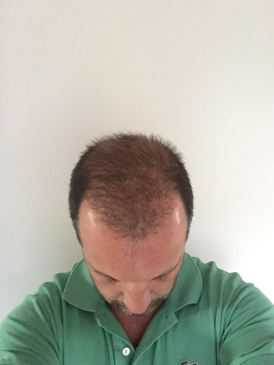 28.04.2016: und wieder deuliche dichtere Haare, ich hoffe es geht so weiter....!