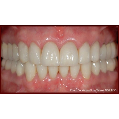 After-Crown-Lengthening-Labell-Patient-A.jpg