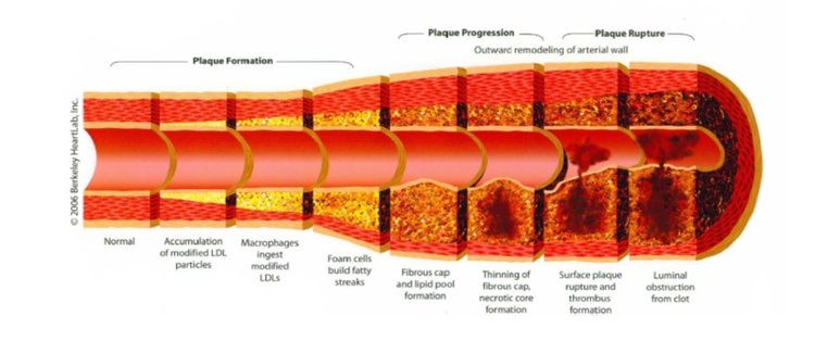 click the image to learn about ATHEROSCLEROSIS