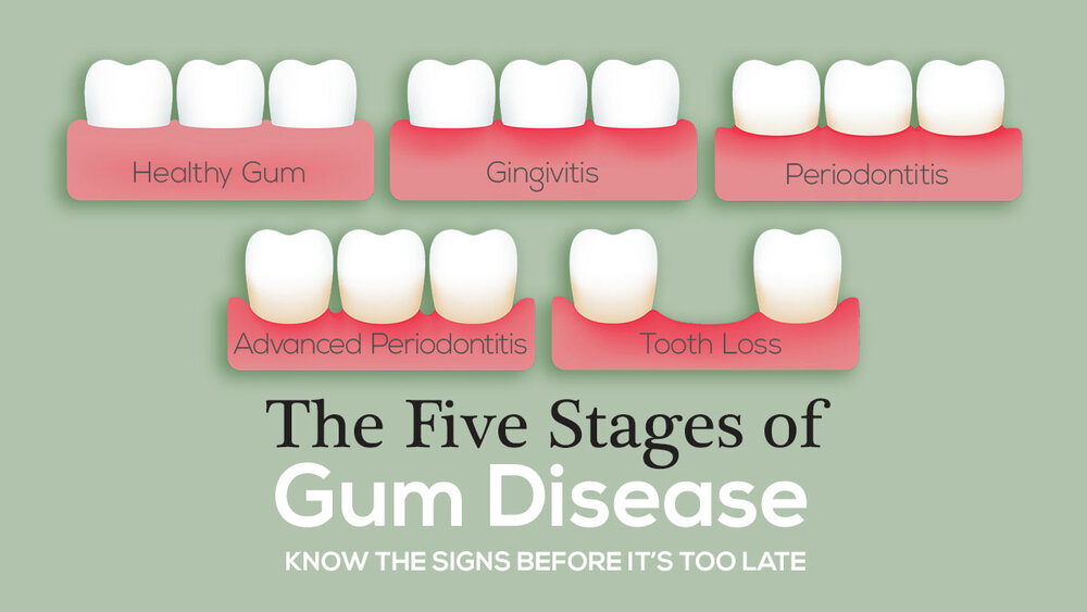 Gums Blog The Mckenzie Center Implants Periodontics
