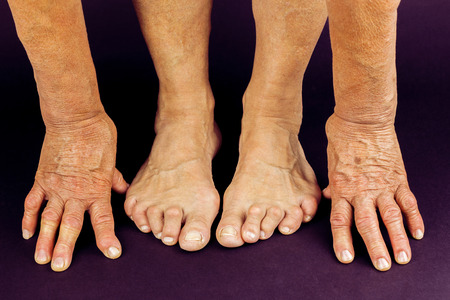 32334940_S_senior_arthritis_woman_hammertoe_bunion_toes_hands_fingers_feet.jpg