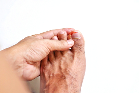 98088729_S_man_foot_toe_ingrown_toe_nail_injury.jpg