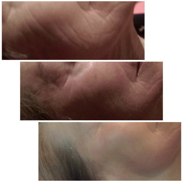 Results from Derma Roller 1st, 3rd and 5th treatment