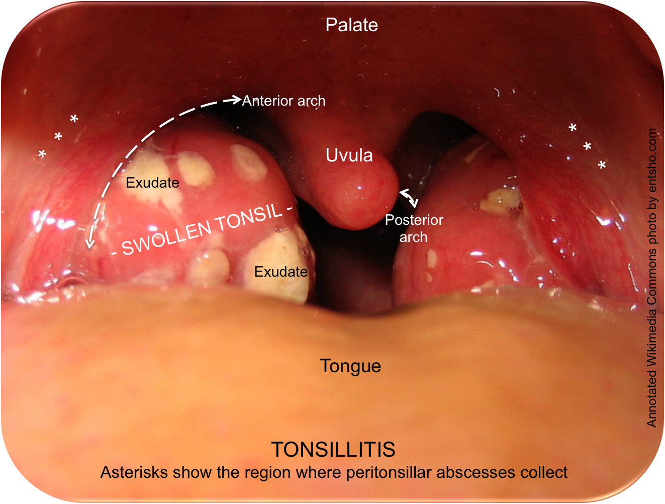 Photo A. Tonsillitis for comparison: note the asterisks over the peritonsillar space, where an abscess would collect.