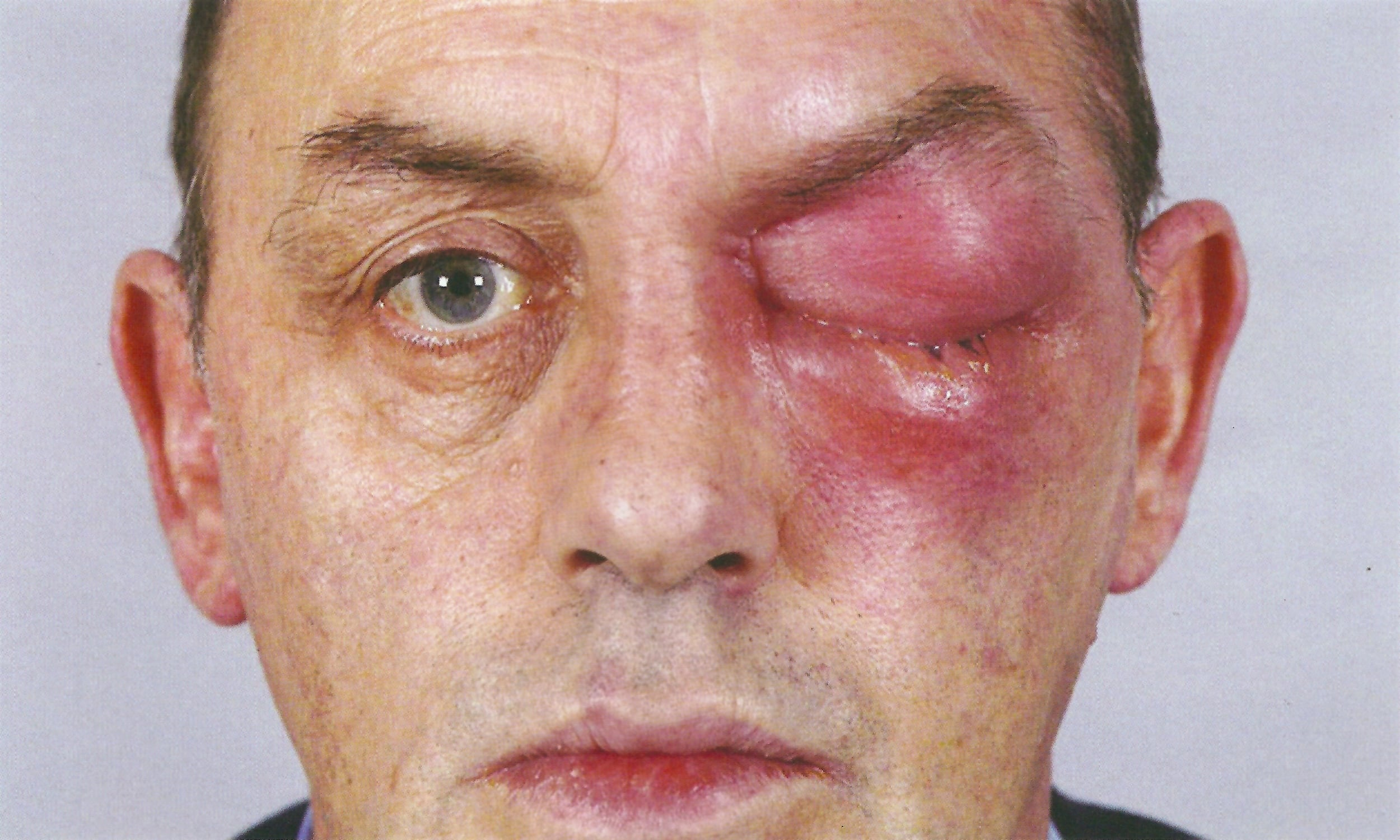 Photo: left post-septal (Chandler II) or orbital cellulitis. Note how the erythema involves the brow, orbit and maxilla.