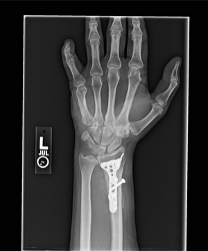 wrist plate.jpg