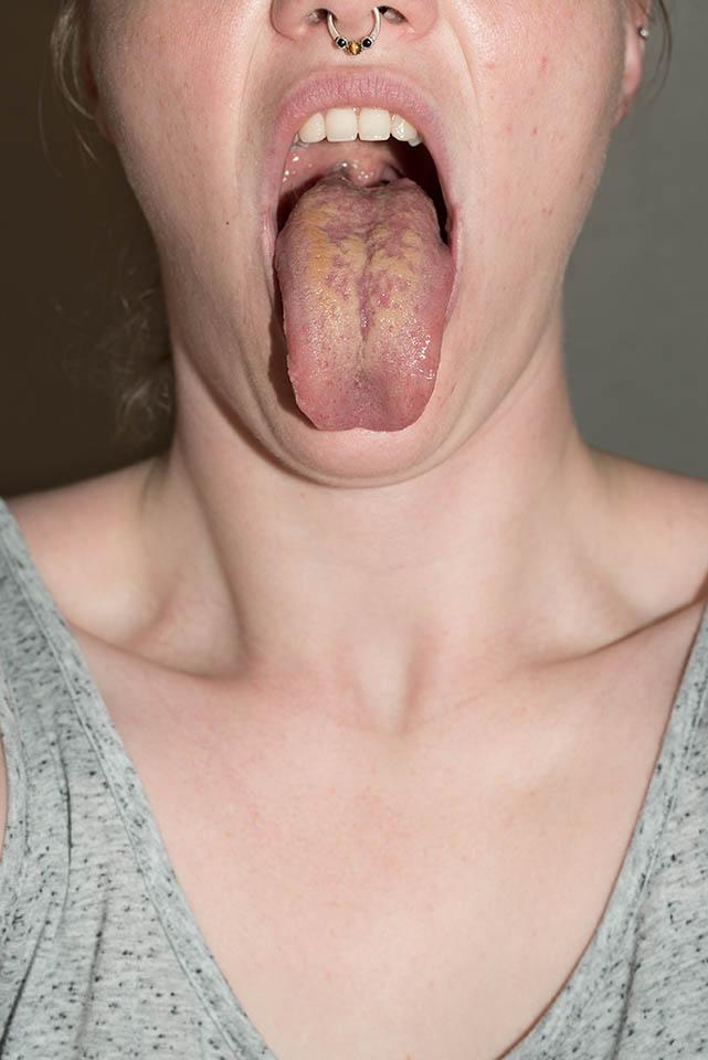 my_tounge.jpg