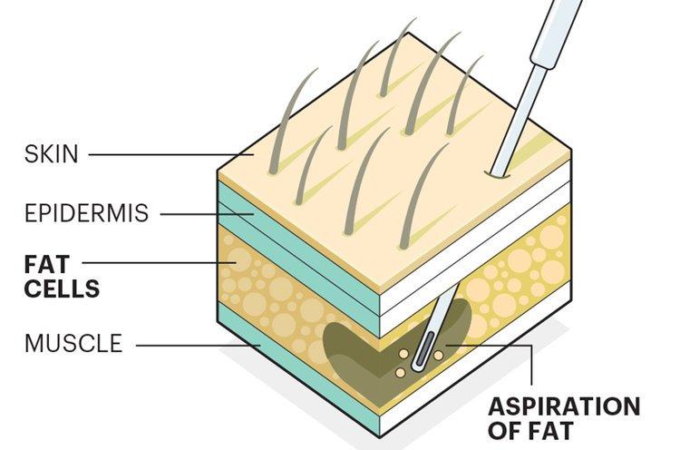 1140-fat-harvesting-stem-cells.imgcache.rev560947f.jpg