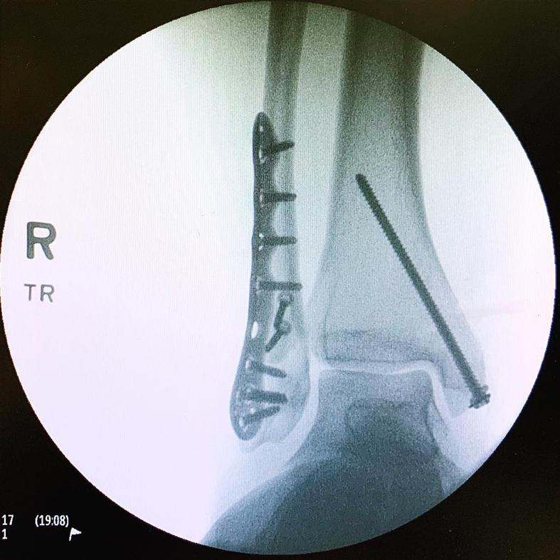 X-ray Post op