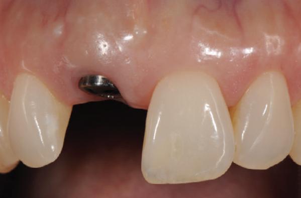 Implants — DENTISTE | Kirkland Dentist