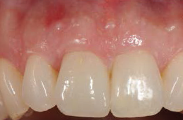 Restored Dental Implant