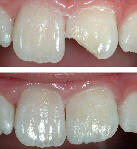 Improve Shape of Teeth