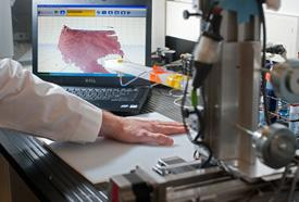 This scanner lets a bioprinter know exactly where to apply skin cells. It could save the lives of thousands of burn victims each year.