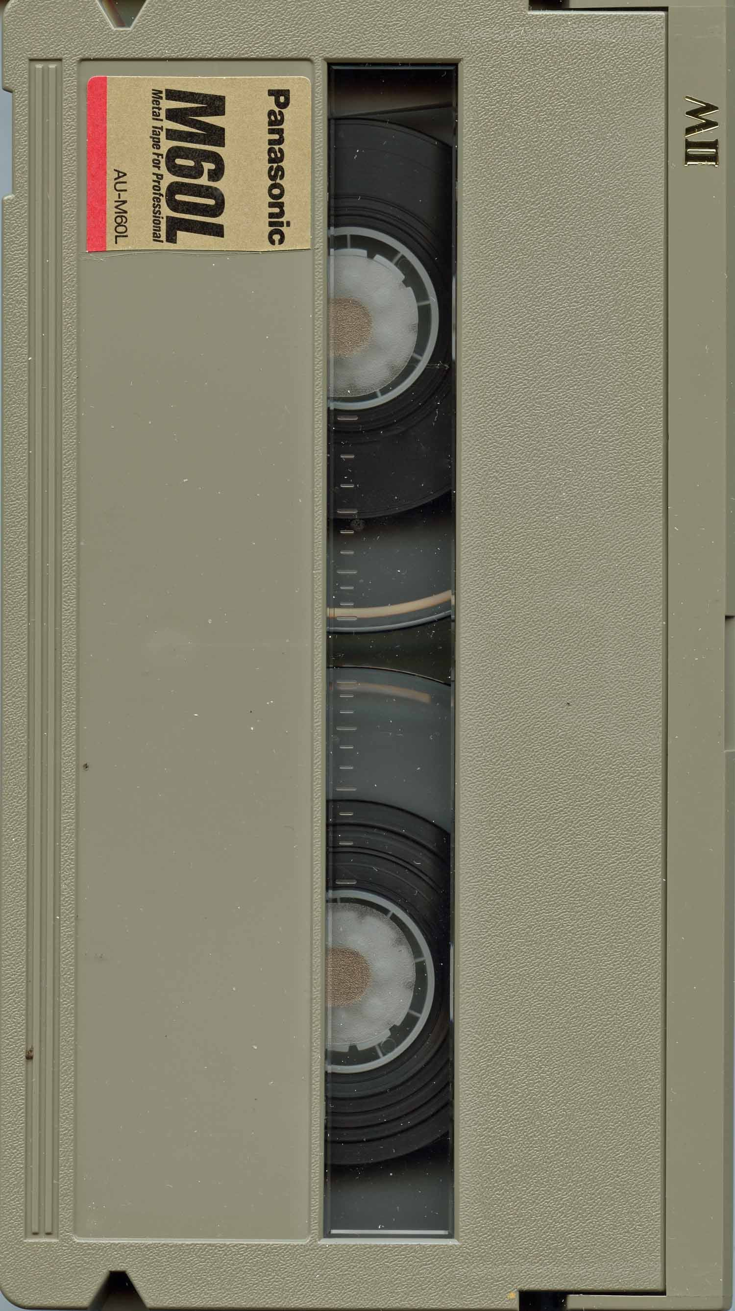 MII Cassette