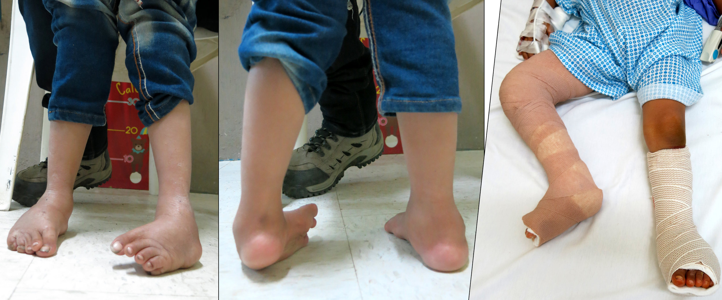 Ponseti casting and clubfoot corrections.