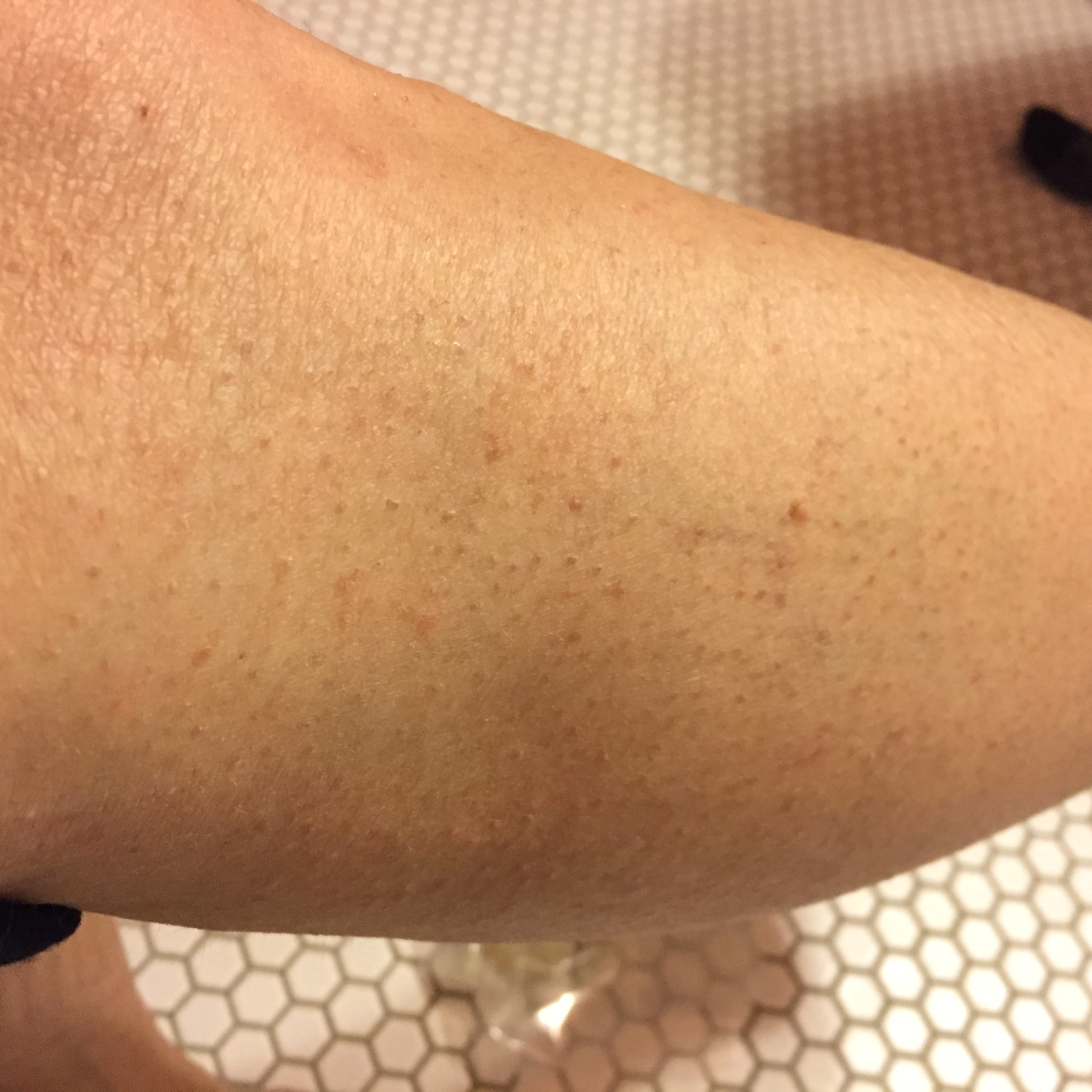 My old, dry leg before using any product.