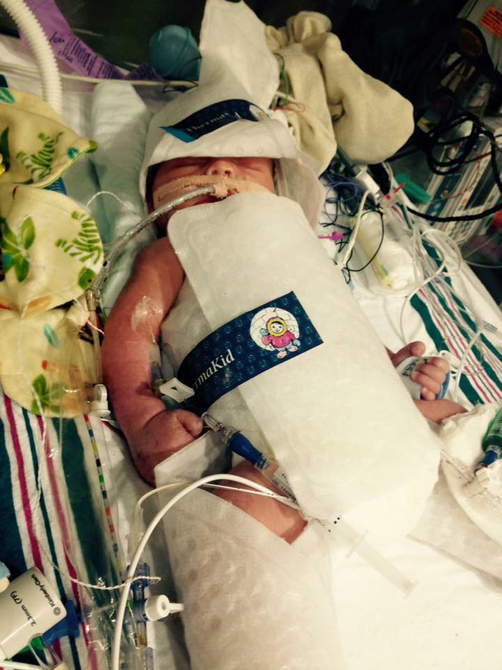 Jude on the night of his birth after being transported to Winnie Palmer Hospital for Women and Children, Orlando, FL