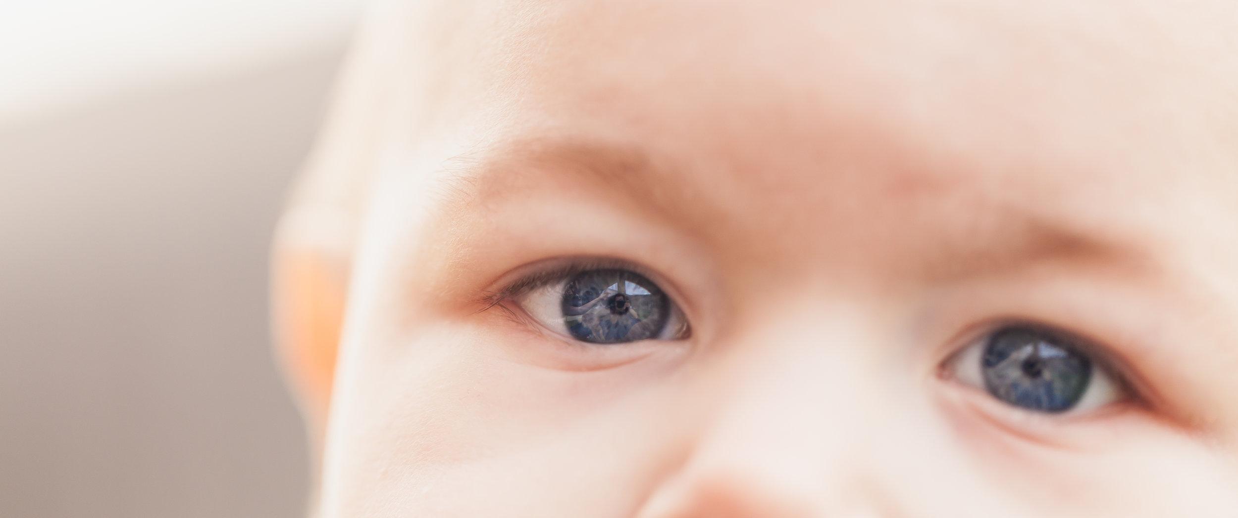 Pediatric - Opthalmology