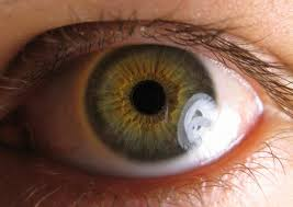 eye with possible glaucoma
