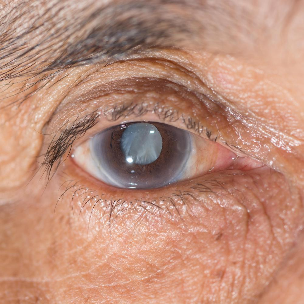 cataract of the eye