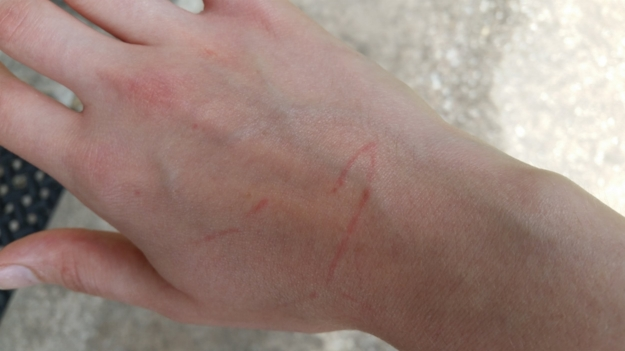 Red scratches courtesy of a client's dog. Not aggression! Just a normal part of being around young dogs.