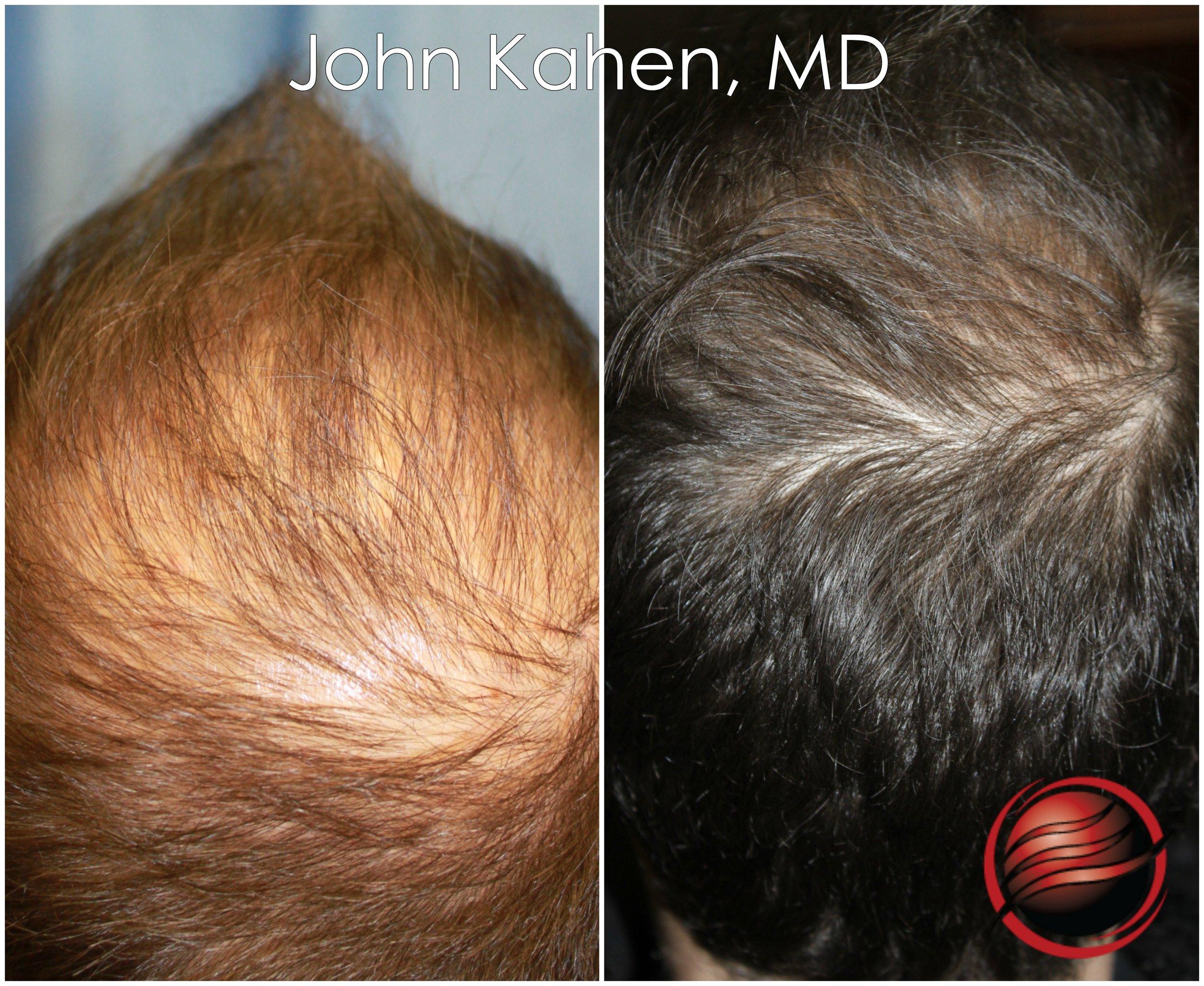 John Kahen MD PRP 4.jpg