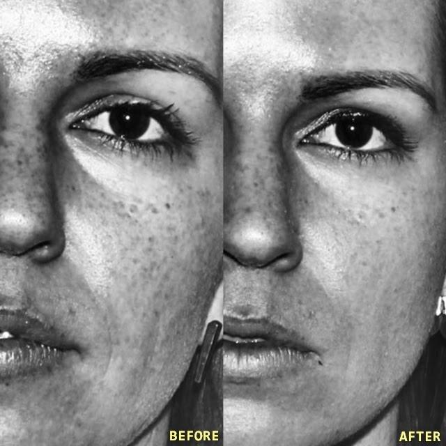 Vampire Facial Platelet Rich Plasma Facial Dr Kass