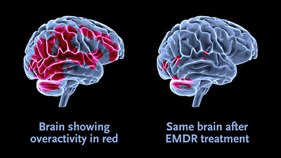 EMDR-web-illustration.jpg