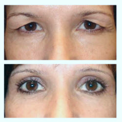 Before and after upper ldi blepharolasty