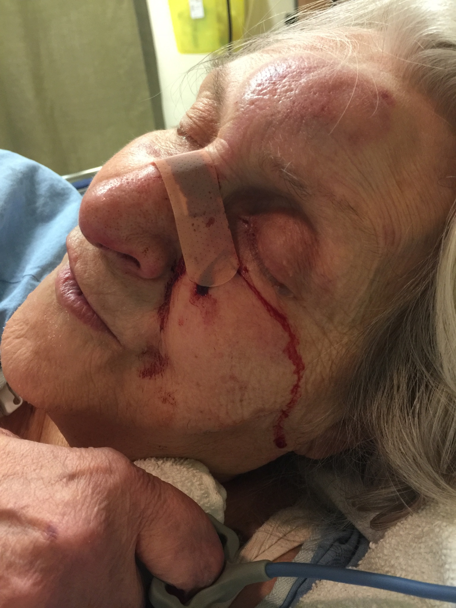 Our mother, who has frontal lobe dementia, got out of bed one night and fell. She broke her nose and cheek bone. It was the janitor who found her bleeding on the floor! We got noticed of this event hours later. Till this day, we have no idea how much time she bleeding and in major pain before being found. If we would have had the solution Kindnest is offering now, we would have known right away because of motion sensor and alert notification to our iPhones/iWatch.