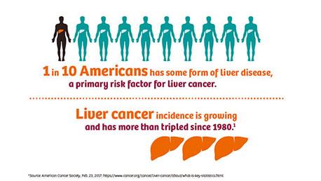 liver_disease_512x288_web_v2-03689423~9.jpg