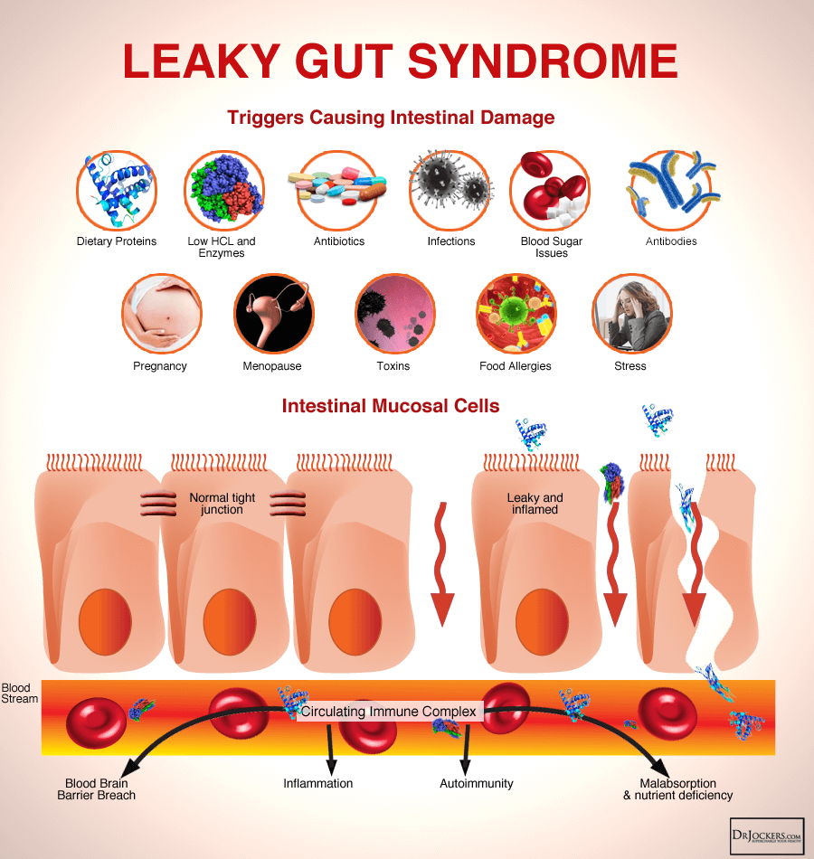 GUTHEALTH_LeakyGutSyndrome.png