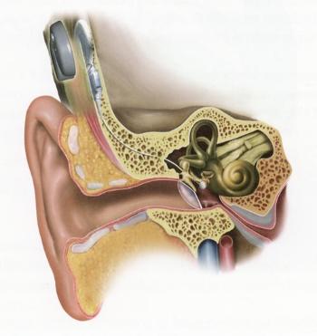 L'implant d'oreille moyenne Vibrant Soundbridge de Med-El
