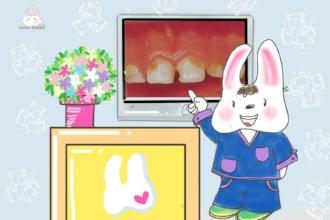 ECC Baby Tooth Decay_Tooth Bunny A Tsang