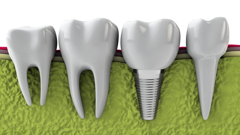THIS IMAGE SHOWS A COMPLETED DENTAL IMPLANT AMONG VARIOUS NORMAL TEETH.  THE DENTAL IMPLANT SCREW HAS BEEN FUSED INTO THE BONE.