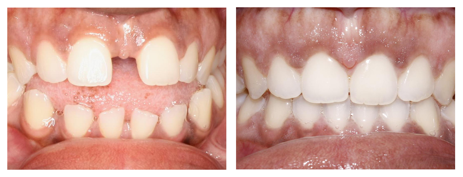 Woman 2 anterior before & after Invisalign