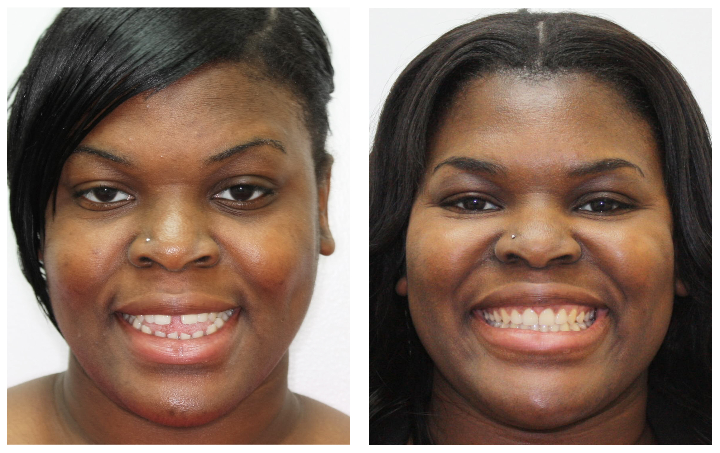 Adult woman 2 extraoral before & after Invisalign