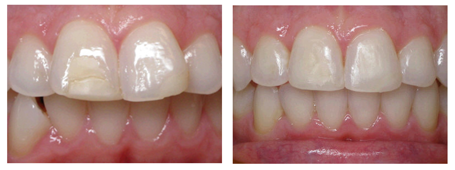 Woman anterior before & after Invisalign