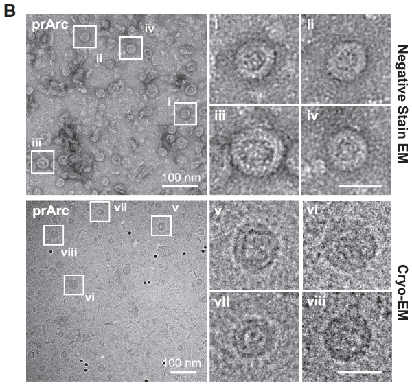 Electron microscope images of the neuronal protein, Arc, forming structures that resemble those typically associated with viral capsids.   From: The Neuronal Gene Arc Encodes a Repurposed Retrotransposon Gag Protein that Mediates Intercellular RNA Transfer. Pastuzyn, Elissa D. et al. Cell , Volume 172 , Issue 1 , 275 - 288.e18