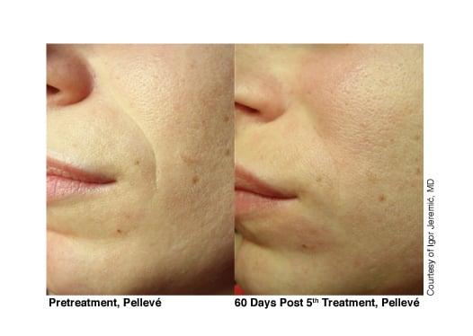 9-Pelleve-Before-After-Treatment-Photos.jpg