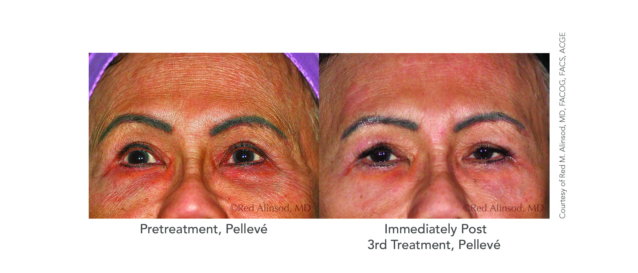 Patient-11-Upper-Face-After-3-Pelleve.jpg
