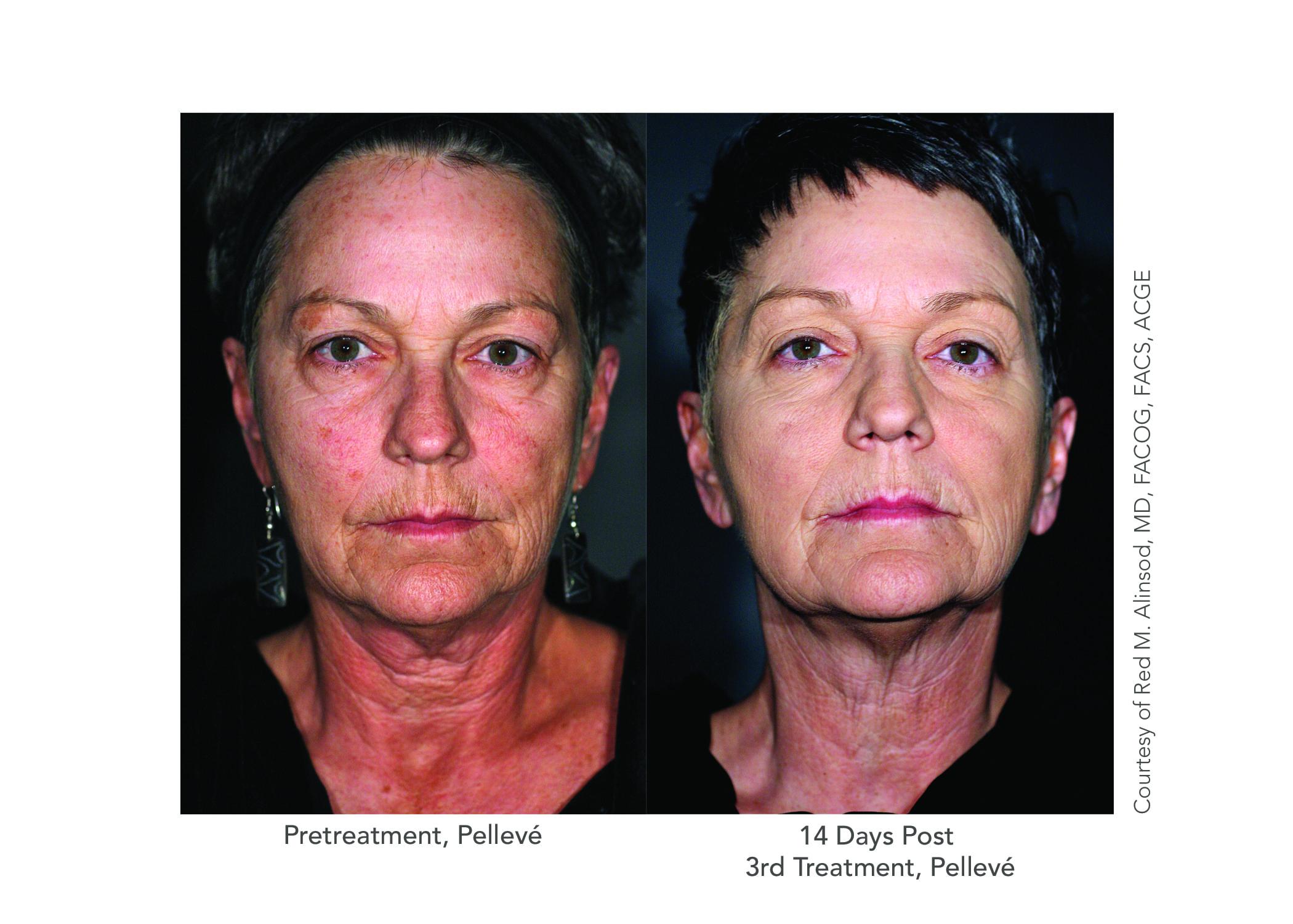 Patient-6-Front-After-3-Pelleve.jpg