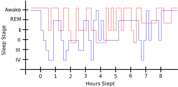 Sleep pattern of a restless legs syndrome patient (red) vs. a healthy sleep pattern (blue)