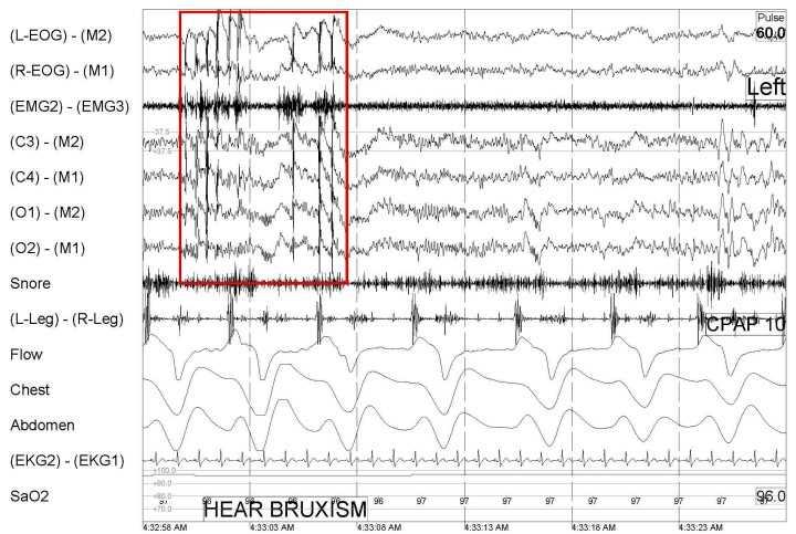 Bruxism during sleep as identified through a sleep study.
